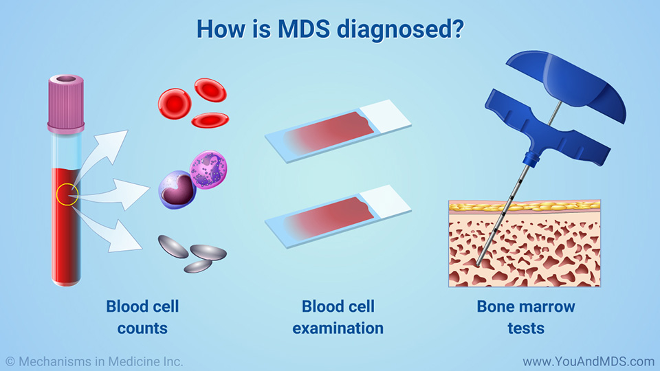 How is MDS diagnosed?
