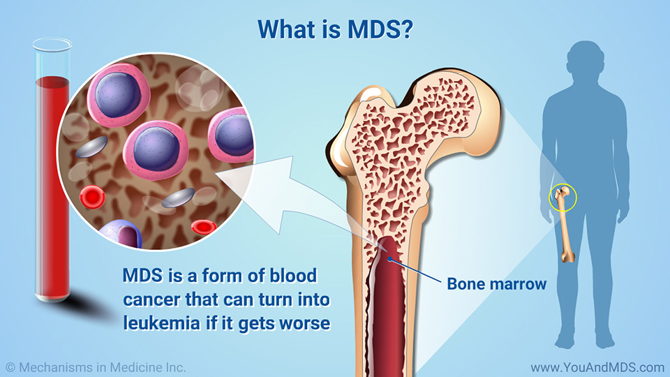 What Is Mds >> Understanding Myelodysplastic Syndromes