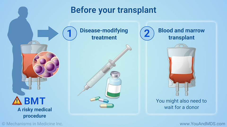 Before your transplant