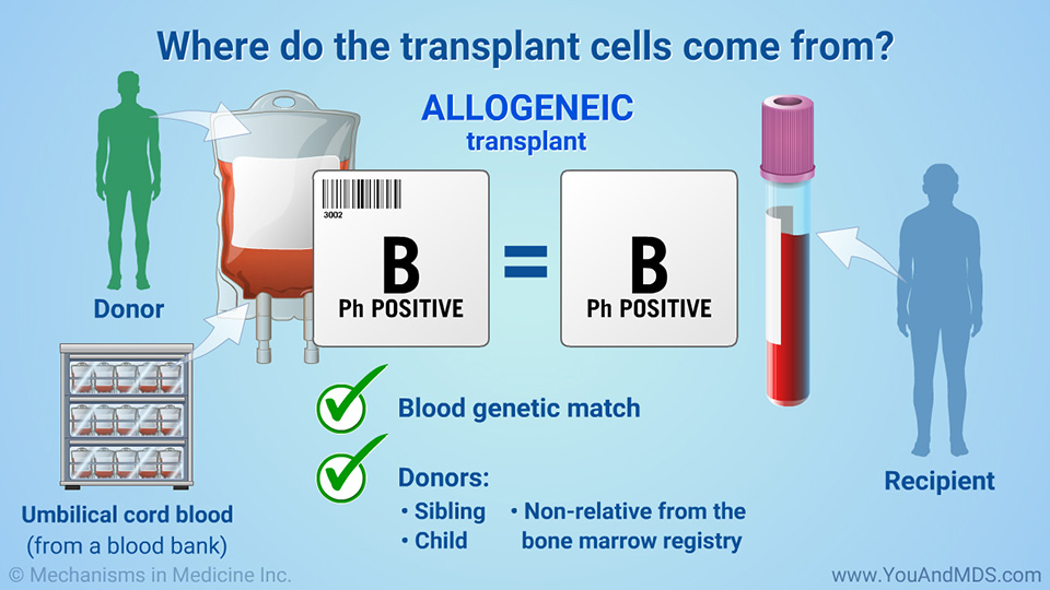 Where do the transplant cells come from?
