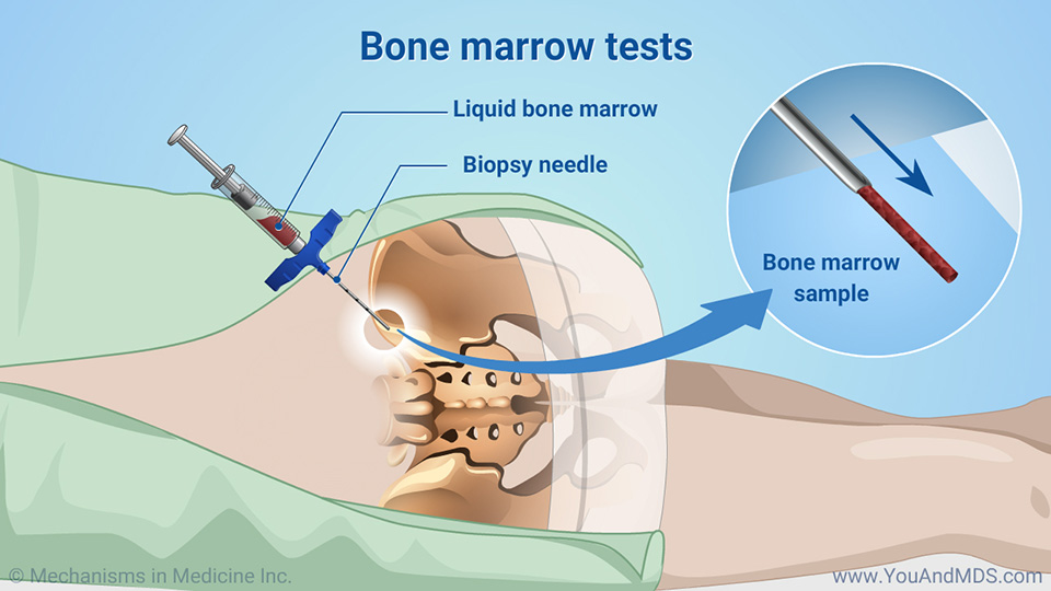Bone marrow tests