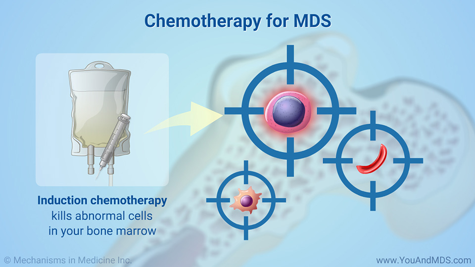 Chemotherapy for MDS