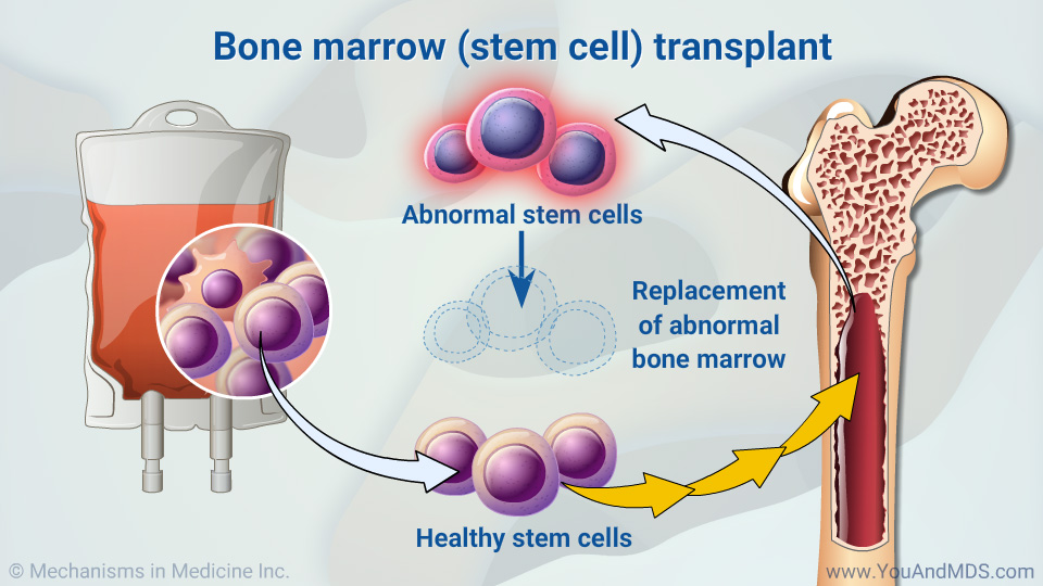Bone marrow (stem cell) transplant