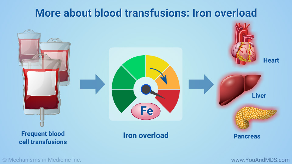 More about blood transfusions