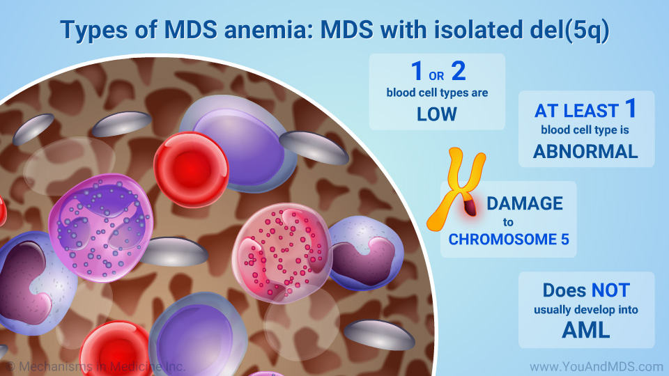 Types of MDS anemia: MDS with isolated del(5q)