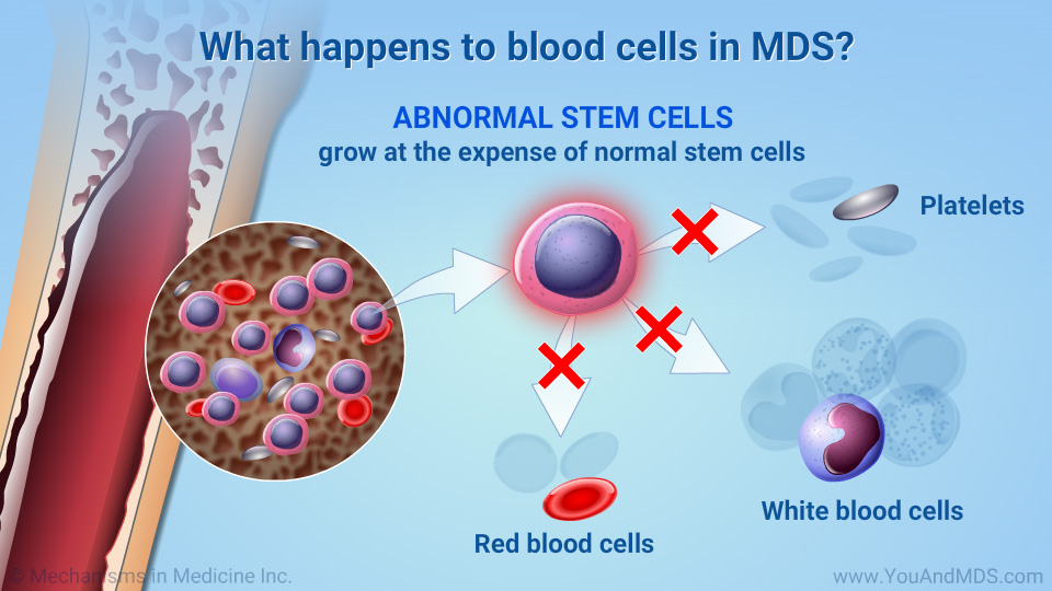 What happens to blood cells in MDS?