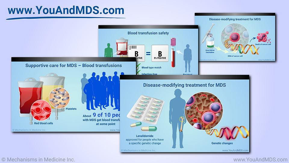 Slide Show - Management and Treatment of MDS
