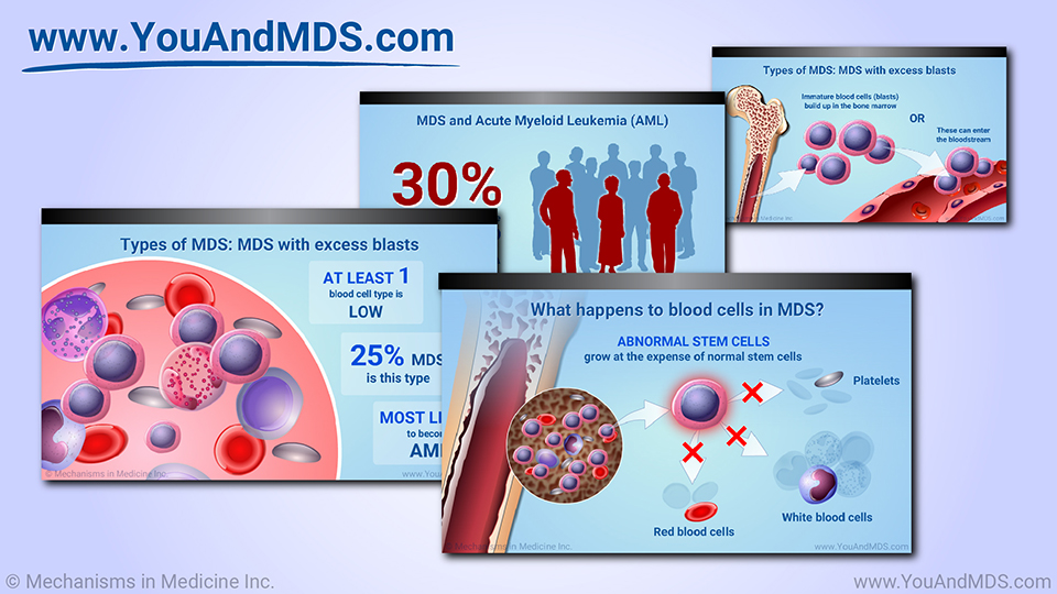 Slide Show - Understanding MDS-related Anemia